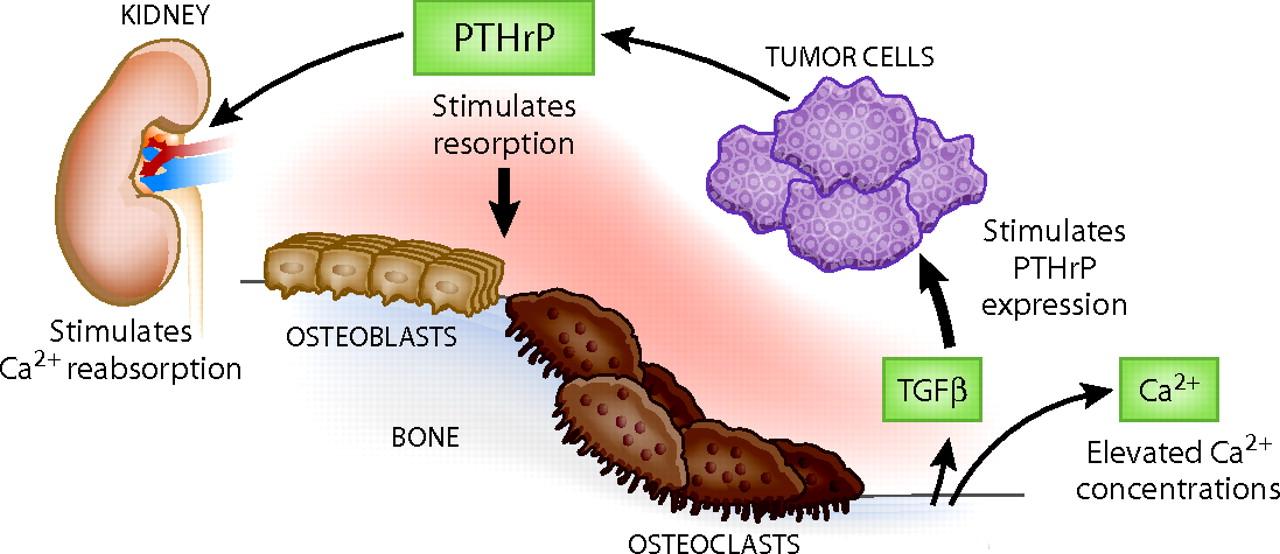 PTHrP-hypercalcemia