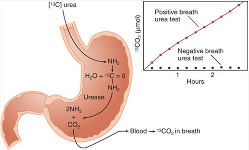 how-urea-breath-test-works