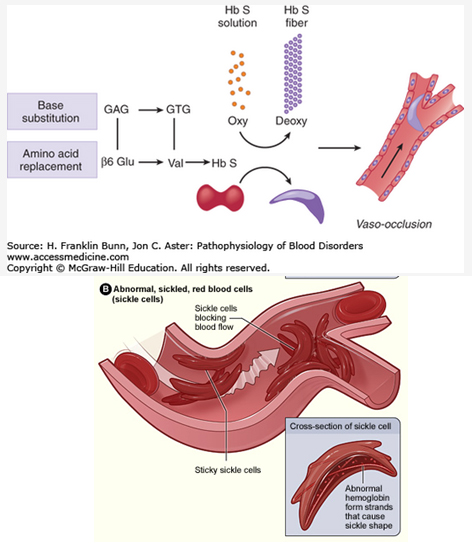 Sickle-Cell-Anemia-Occlusion-1Mechanism