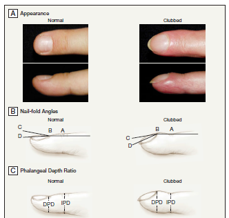 Img Cred: The JAMA Rational Clinical Examination